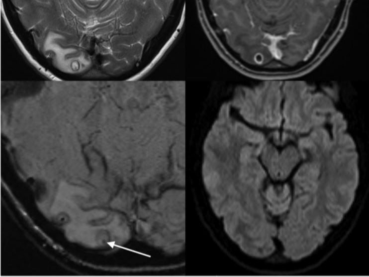 doctors find tapeworm larvae in womans brain after she complains of headaches - Doctors find tapeworm larvae in woman's brain after she complains of headaches